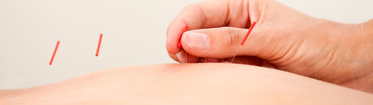 acupunture, chiropractor